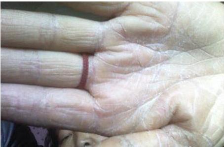 灰指甲康复,灰指甲公司.png