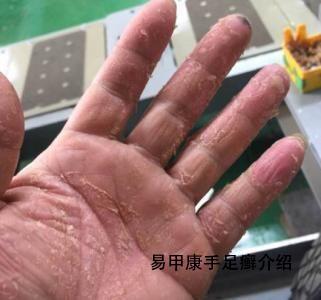 灰指甲品牌连锁.jpg