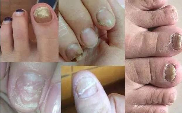 灰指甲治疗.jpg