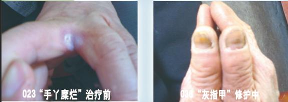 治疗灰指甲加盟.png
