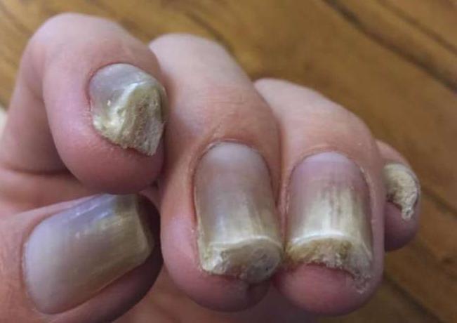 治疗灰指甲品牌公司,灰指甲加盟哪家好.png