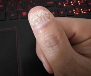 灰指甲加盟,加盟灰指甲项目.png