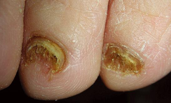 灰指甲加盟,治疗灰指甲加盟.png