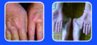 灰指甲加盟,加盟灰指甲.png