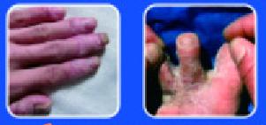 灰指甲加盟,灰指甲连锁公司.png