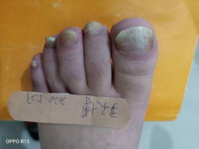 灰指甲加盟,灰指甲代理,灰指甲品牌,治疗灰指甲.jpg