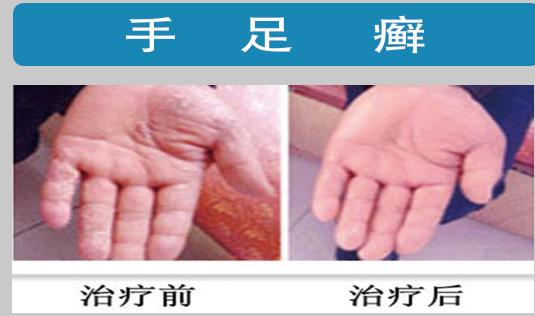 灰指甲加盟,灰指甲品牌,灰指甲公司.png