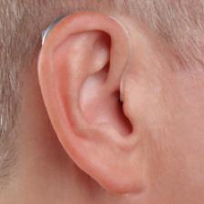 2019智能iQ瑞克式可充电助听器