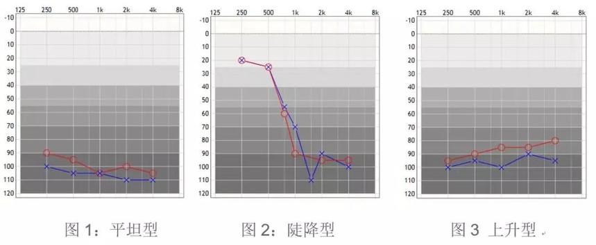 src=http_%2F%2Fwww.tinnitus-light.org%2Fupload%2F0(18).jpg&refer=http_%2F%2Fwww.tinnitus-light.jpg