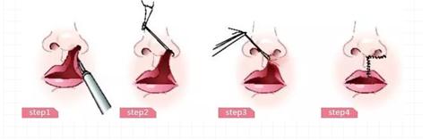 天津伊美尔技术院长特色项目发布季:熊氏·继发唇腭裂修复术 缺陷精细修复,绽放自信笑容