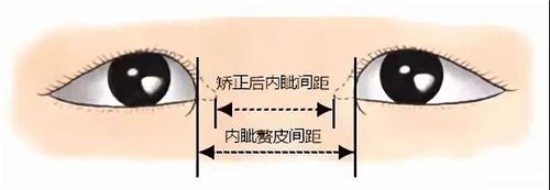 天津伊美尔王牌项目芭比美眼放大双眸,塑造高级脸