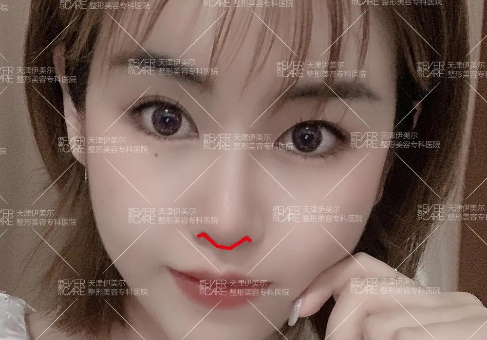 天津伊美尔王牌新品发布季,仿生肋软骨隆鼻打造高级感美鼻