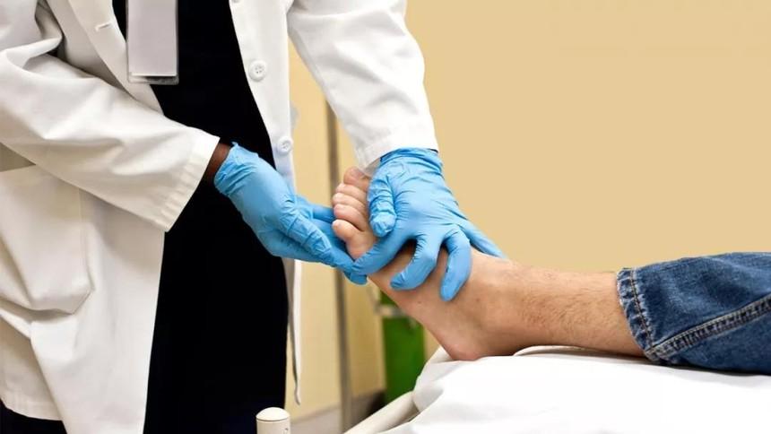 案例 | 糖尿病并发症的干细胞治疗研究案例