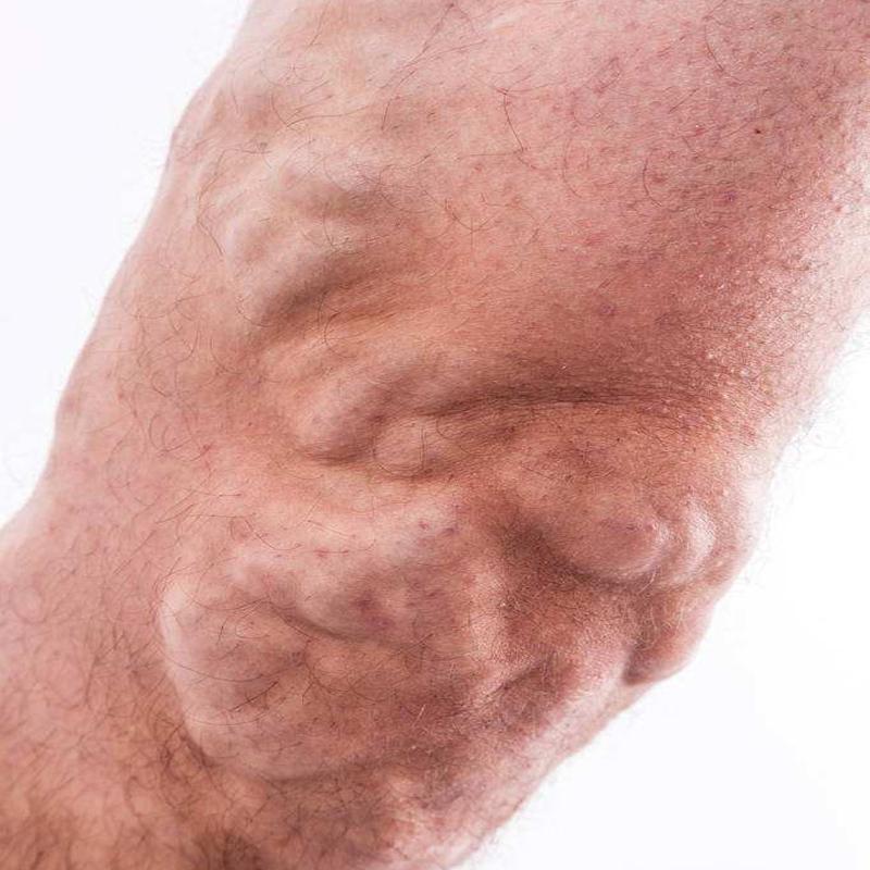 脉管炎早期症状