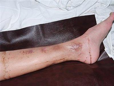 骨髓炎的早期症状