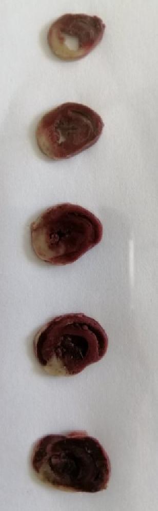 大鼠心肌缺血再灌注模型制备
