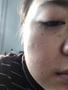洗纹身论坛:苏州女孩去面部凹陷疤痕恢复过程!