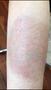 李修肤--遮盖后的纹身疤痕能去除吗!