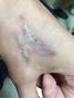 李修肤--洗纹身不可怕,可怕的是洗不干净还增生!