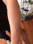 洗纹身论坛:健身教练洗双鱼包小臂纹身共四处记录!
