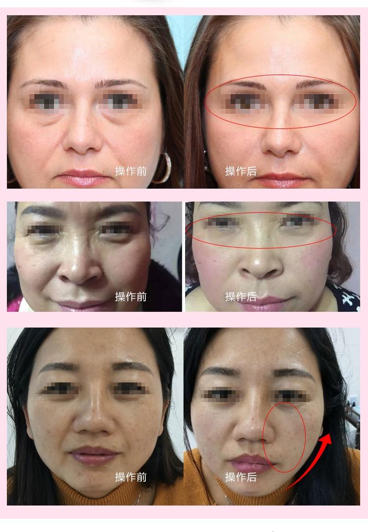 眼部护理仪效果对比_05.jpg
