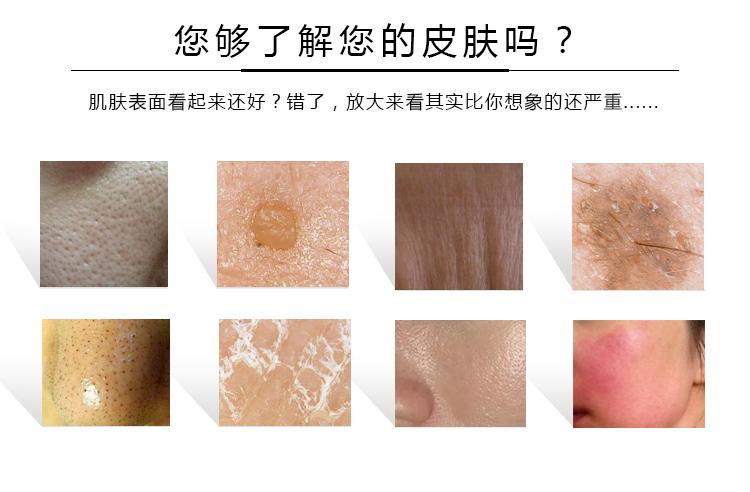 了解皮肤吗?_04.jpg