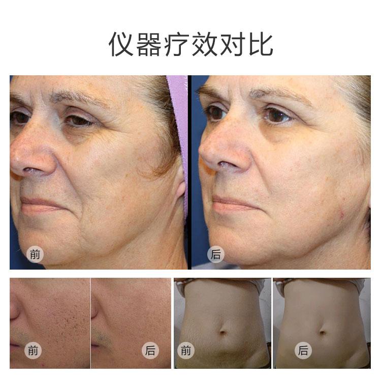 离子刀美容仪仪器疗效对比_07.jpg