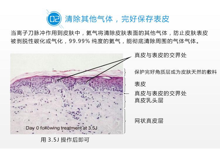 离子刀美容仪仪器优势2_09.jpg