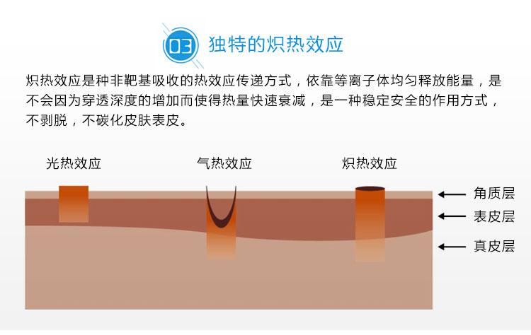 离子刀美容仪仪器优势3_10.jpg