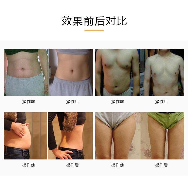 减肥如何减?减肥仪器如何选?