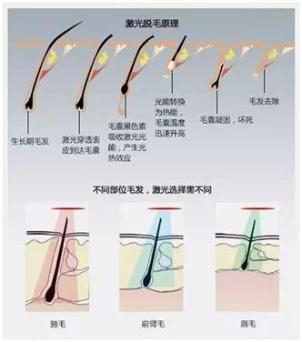 激光美容仪器的效果?激光脱毛有哪些问题的存在?