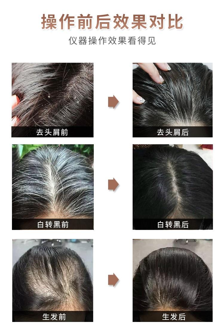 头疗健康养护专家使用前后效果对比