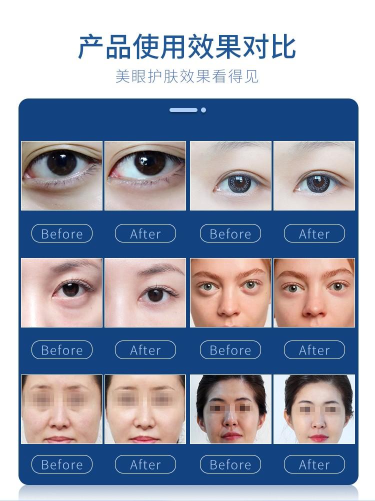 台式护眼仪使用效果对比_07.jpg