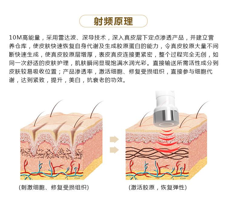 雷达冰雕仪射频原理_05.jpg