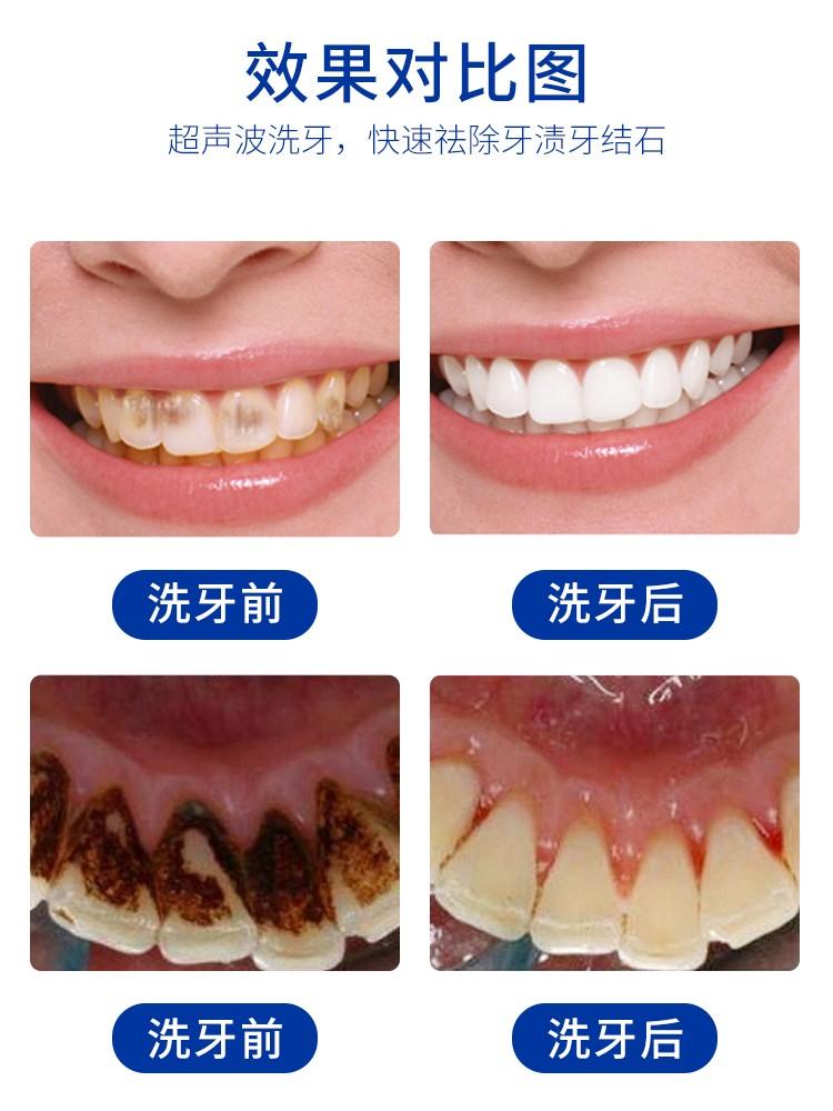 可视超声波洁牙仪案列对比.jpg
