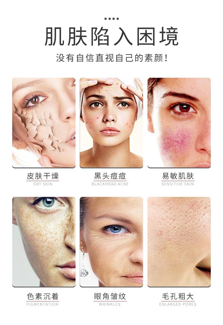 光子补水嫩肤仪补充肌肤水分
