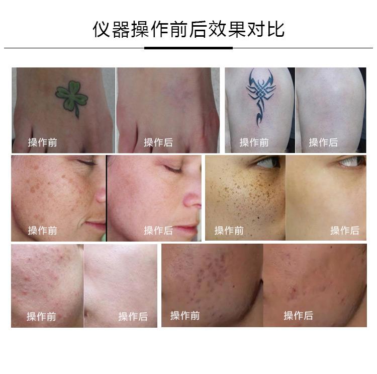 美容仪器祛斑对皮肤有伤害吗?