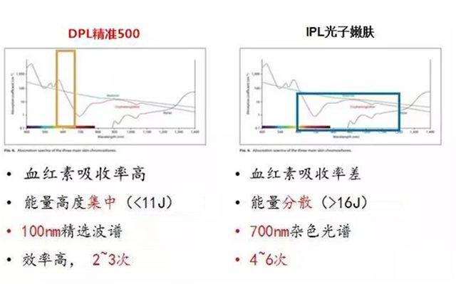 DPL和IPL有什么区别.jpg