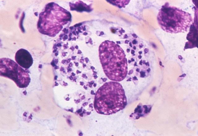 人体细菌感染.jpg