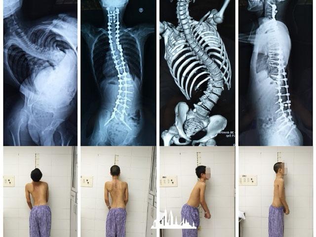 45枚螺钉治疗重度脊柱侧弯-1.jpg