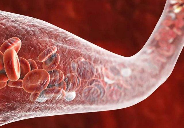 心血管疾病11.jpg