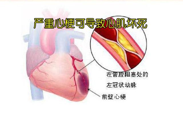 心肌梗塞2副本.jpg
