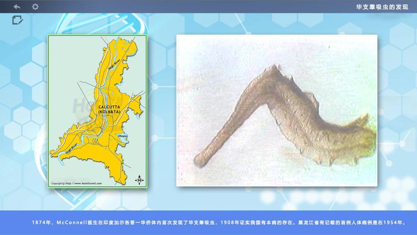 黑龙江省华支睾吸虫感染诊断和综合防治的虚拟仿真