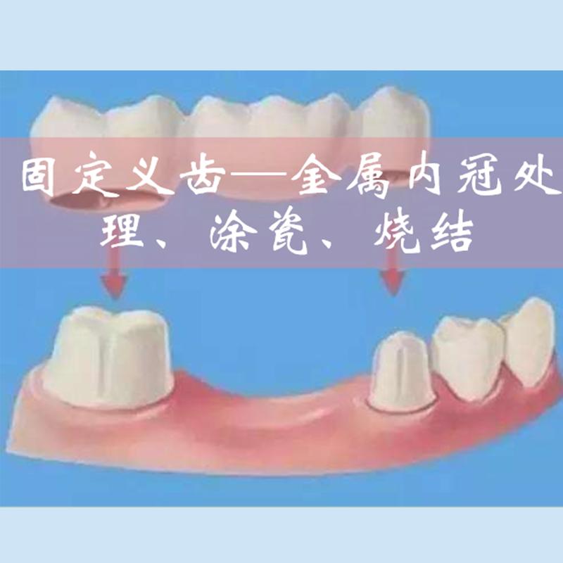 固定义齿---金属内冠处理、涂瓷、烧结