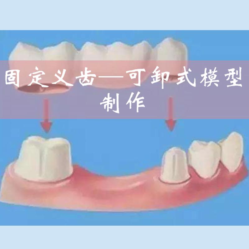 固定义齿---可卸式模型制作