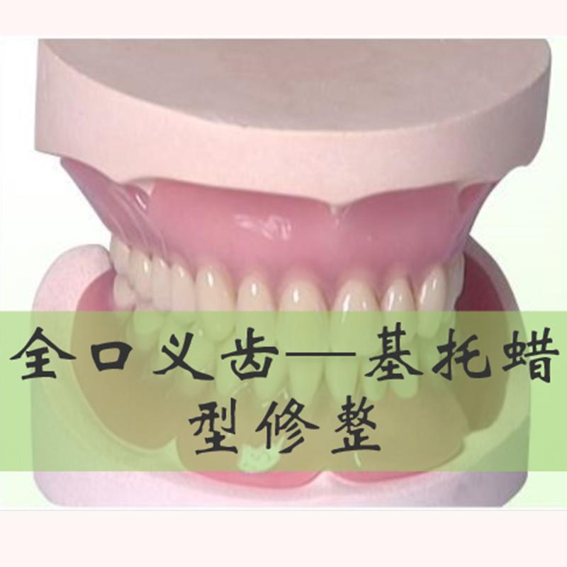 全口义齿---基托蜡型修整