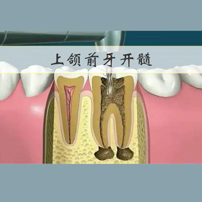 上颌前牙开髓