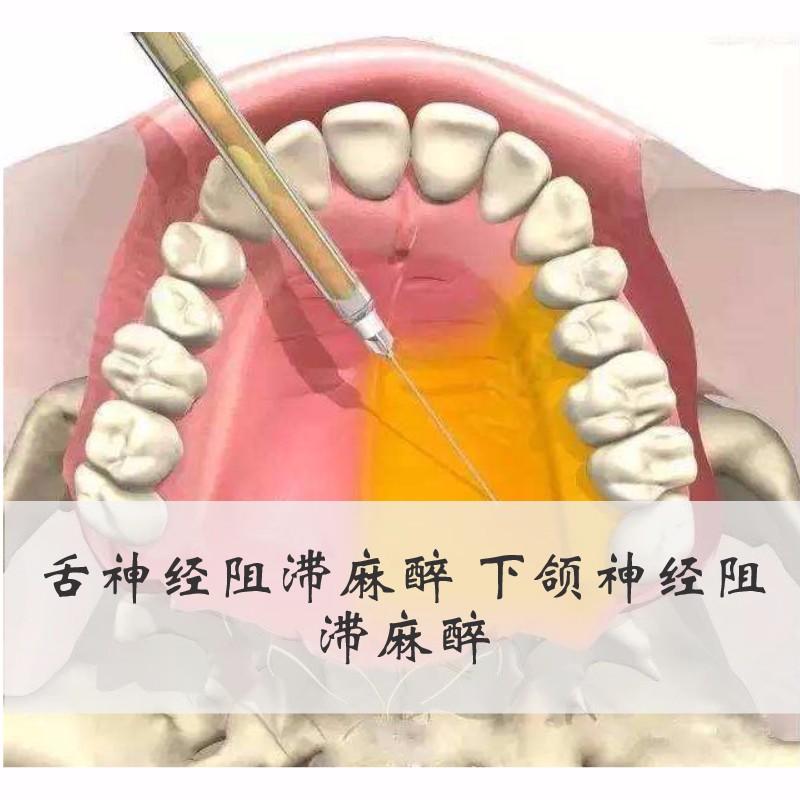 舌神经阻滞麻醉 下颌神经阻滞麻醉