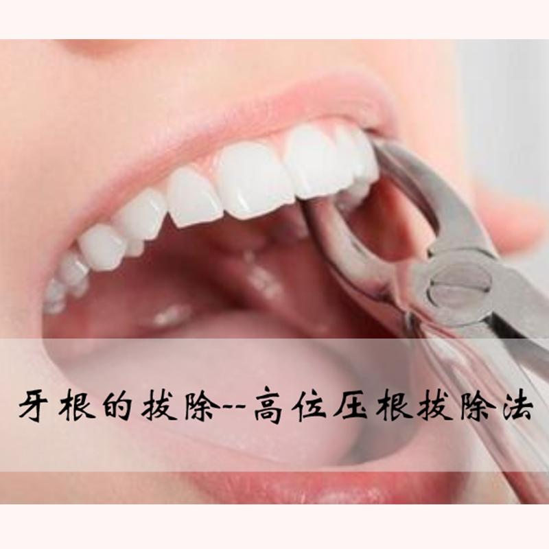 牙根的拔除--高位压根拔除法
