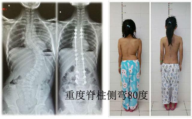 重度80°脊柱侧弯手术矫正.jpg